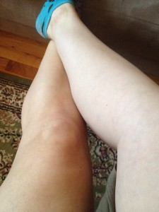 before and after using Alba Sunless Tan. (applied to my left leg) Yup, I'm so pale I'm green.